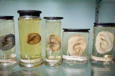 Hunterian Museum : Glasgow, Scotland  Anatomical preparation; Acquired or prepared by William Hunter (1718-1783)