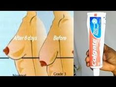 in today's video I want to show you how to tighten sagging breast. Health And Beauty Tips, Health Tips, Colgate Toothpaste, Cuticle Care, Smoking Causes, Plank Workout, Wrinkle Remover, Natural Health Remedies, Pregnancy Workout