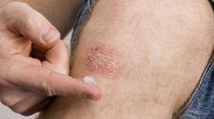 Psoriasis : un nouveau traitement puissant