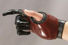 Partial hand prosthesis external prosthesis / multi-articulated / myo-electric - PROTUNIX