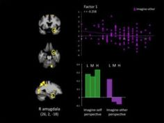 When individuals with psychopathy imagine others in pain, brain areas necessary for feeling empathy and concern for others fail to become active and be connected to other important regions involved in affective processing and decision-making, reports a new study.