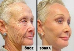 What would you do To Look 15 Years Younger? A Famous Celebrity Doctor's New Wrinkle Remover Does Exactly That! - Botox Doctors Are Outraged By The Results! Perfumes Gucci, Perfume Hermes, Image Skincare, Creme Anti Age, Mary Kay Ash, Younger Skin, Sagging Skin, Wrinkle Remover, Wash Your Face