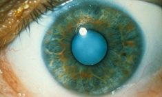 Is this the end of cataract operations? #DailyMail