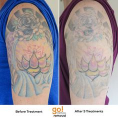 1056 Best Tattoo Removal In Progress Images In 2019 Grey