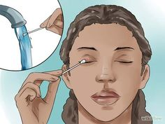How to Get Rid Of a Stye. A stye is a painful swollen bump on the edge of your eyelid, sometimes caused by an infected eyelash follicle or oil gland. They usually go away on their own after about a week, but you can take measures to ease. SEE DETAILS Sty In Eye Remedies, Eye Stye Remedies, Natural Remedies, Health Remedies, Essential Oils For Stye, Get Rid Of Stye, Treating A Stye, Doterra, Eyes