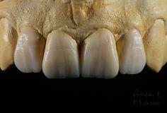 wax -#12-22  dental technician Nondas Vlachopoulos Dental Pictures, Porcelain Crowns, Dental Anatomy, Dental Technician, Dental Laboratory, Dental Art, Oral Health, Dentistry, Teeth