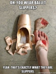 Sometimes happens with my feet when had a 2 hour dance rehearsal on point at the…