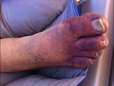 Blue Toe Syndrome – Why You Need To Treat It Immediately?