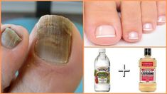 Best 7 Mega Recipe You get rid of the nail fungus – SkillOfKing. Beauty Care, Diy Beauty, Beauty Skin, Health And Beauty, Beauty Hacks, Toe Fungus Remedies, Nail Fungus Removal, Ingrown Toe Nail, Fungal Nail