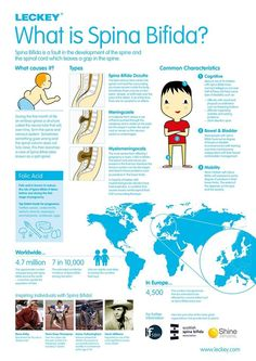 Spina Bifida facts. I'm pinning this as it's the last day of Soina Bifida and Hydroceohalus Awareness week 2013 . I know people with Spina Bifida