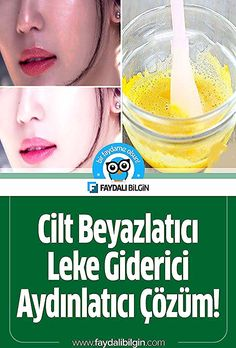 Skin Whitening Spot Remover Brightening Solution Previous Post Next Post Beauty Skin, Hair Beauty, Beauty Makeup, Metallic Lipstick, Homemade Mask, Face Contouring, Green Eyeshadow, Skin Care Cream, Solution