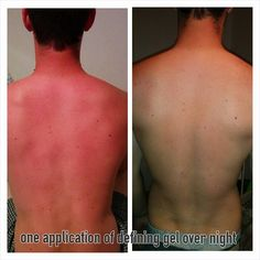 It Works Defining Gel is absolutely amazing on sun burns!!