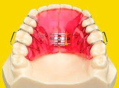 Resultado de imagen para catalogo dental de servicios