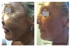 What is Profhilo? Profhilo is a bioremodelling treatment which works to address Profhilo deeply hydrates the skin whilst adding weightless volume for a youthful look. Cheek Fillers, Dermal Fillers, Skin Aesthetics, Creepy Skin, Cosmetic Clinic, The Beauty Department, Jawline, Skin Tightening, Moisturiser
