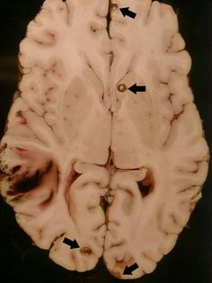 Cysticercosis is a parasitic infection that results from ingestion of eggs from the adult tapeworm, Taenia solium (T. solium) . When cysticercosis involves the central nervous system, it is called neurocysticercosis. Neurocysticercosis is the most common parasitic infection of the brain and a leading cause of epilepsy in the developing world, especially Latin America, India, Africa, and China
