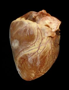 Cancer Heart