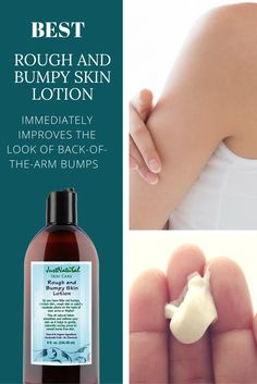 Rough and Bumpy Skin Lotion / You Can Finally Treat Those Annoying Back-of-the- Arm Bumps, little red bumps, chicken skin, rough skin or patchy keratosis pilaris on the back of your arms or thighs. This all nutritive lotion smoothes and softens your skin as it helps to gently, naturally unclog pores to reveal bump free skin. No Mineral Oil, No Petrolatum, No Silicone, No Artificial Fragrance, No Artificial Color. Naturally helps restore skin hydration and moisture levels with long-lasting…