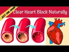 Your Heart will Thank You for Clearing Clogged Arteries & Bad Cholesterol (My Reports Proved This)