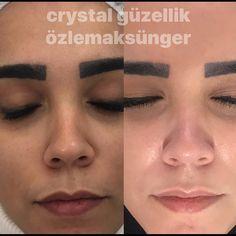 Cilt bakımı mükemmel sonuçlar Crystal güzellik farkıyla