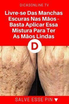 Manchas nas maos | Livre-se Das Manchas Escuras Nas Mãos - Basta Aplicar Essa Mistura Para Ter As Mãos Lindas!