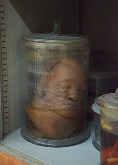 Museo di Anatomia Umana (Museum of Human Anatomy), Pisa: Italy