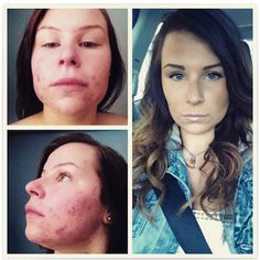 Skincerity before & after