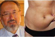 Κατακράτηση υγρών:Ο Dr. Σ. Αδαμίδης εξηγεί πώς θα απαλλαγούμε άμεσα & φυσικά από τα περιττά κιλά