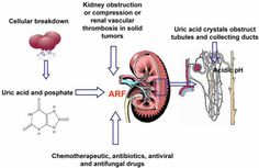 http://renalcalculi.net/acute-renal-failure.html Excessive kidney loss strategies and information.