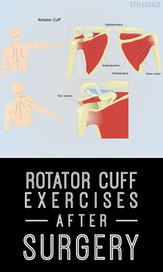 Do you suffer from excruciating pain in the shoulder that often radiates to other parts of your arm? Know the best rotator cuff exercises after surgery here. Read on to know more