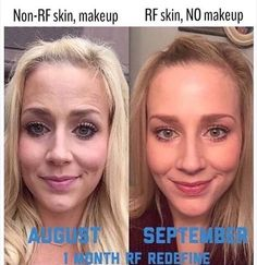 Here is what your skin can look like after using Rodan + Fields! Healthy, Glowing and Foundation Free! Take the 60 day challenge TODAY Rodan Fields Skin Care, Rodan And Fields Redefine, Old Makeup, I Love Makeup, Heavy Makeup, Face Makeup, Fitness Before And After Pictures, Redefine Regimen, Younger Looking Skin