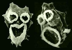 Naegleria fowleri  These guys look so happy to see you, but if you have them run to the hospital immediately. Most common to infect a host in the summer months, this parasite enters your body through your nasal cavity and invades the brain. Being infected with this parasite is usually fatal.