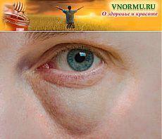 Мешки под глазами причины появления и лечение