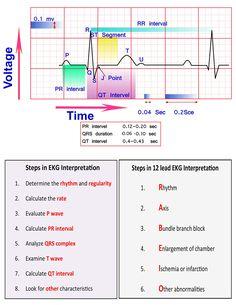 Learn ECG Interpretation 10 Steps to Learn ECG Interpretation Learning the art of ECG interpretation requires intellect, commitment,… Nursing School Notes, Nursing Schools, Lpn Schools, Nursing Cheat Sheet, Ekg Interpretation, Nursing School Prerequisites, Cardiac Nursing, Pediatric Nursing, Critical Care Nursing