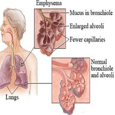 Natural treatments for emphysema (COPD)