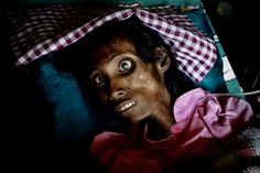An AIDS patient in Cambodia moments before her death. Poverty / Aids
