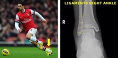 #Arsenal captain #MikelArteta hopes to return soon. The midfielder sprained his ankle on a tackle during the #ChampionsLeague playoffs. Check out more ankle #injuries in professional sports at http://insideinjuries.com/category/ankle/.
