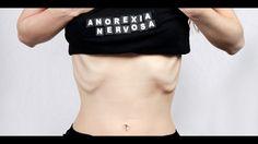 Liked on YouTube: LA ANOREXIA NERVIOSA definición y tipos