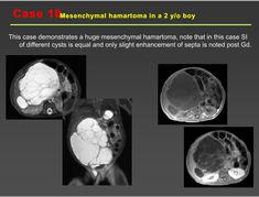 Pediatric Radiology, Pediatrics, Notes, Report Cards, Notebook
