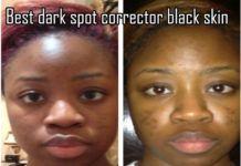 15 Stuff To Buy Ideas Dark Spot Corrector Acne Scar Removal Dark Spots On Face