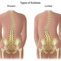 Scoliosis is a condition where the spine is either curved too far forward or backward.  It can occur at any age, but it usually develops in children after age 10.  Scoliosis causes the vertebrae to twist and become deformed.  As a result, a looseness and weakness can occur in the ligaments and muscles.    However, there are exercises that can help...
