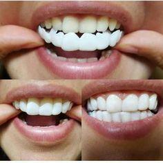 snap on smile teeth veneers cost Smile Dental, Smile Teeth, Teeth Care, Dental Teeth, Dental Care, Veneers Teeth Cost, Dental Veneers, Perfect Teeth, Perfect Smile