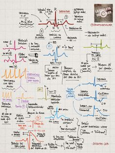 Ondas características de ECG