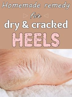 Homemade remedy for dry and cracked heels.