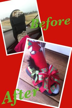 Shoe cast for broken leg. Before and after