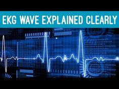 Qrs Complex, Ekg Interpretation, P Wave, Cardiac Nursing, Nursing Notes, Cardiology, Heart Health, Medical School, Studying