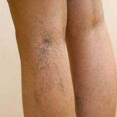 Effective Natural Cure For Spider Veins