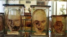 """Exploring the medical museums of Paris, all of which feature in the latest edition of """"Only in Paris"""" available here: http://www.onlyinguides.com/books.php?bookid=9"""