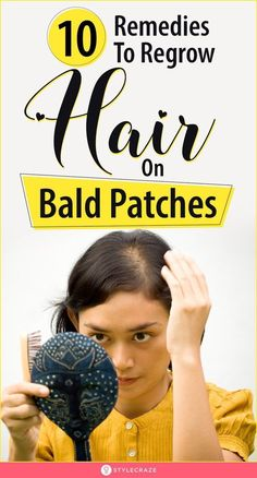 10 Remedies To Regrow Hair On Bald Patches