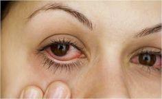 Entre brasileiras a maquiagem é o principal veículo de desconforto nos olhos, mostra levantamento. Saiba como se proteger.         Que a m...