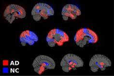 Modelos computacionales optimizarían diagnóstico de alzheimer. FOTO: UN.